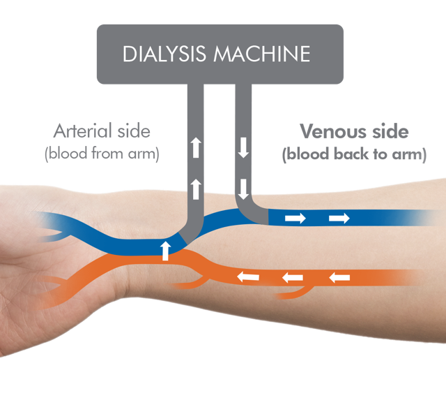 Diagram showing the interaction between patient and the dialysis machine